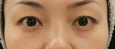 脱脂CRF法による目元のクマ治療の症例写真[ビフォー]