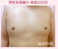 仙台中央クリニックの豊胸手術(胸の整形)の症例写真[アフター]