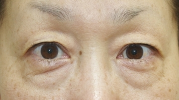 タウン形成外科クリニックの目元整形・クマ治療の症例写真[ビフォー]