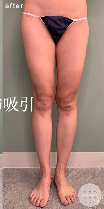 くさのたろうクリニックの脂肪吸引の症例写真[アフター]