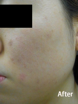 フェミークリニックのニキビ治療・ニキビ跡の治療の症例写真[アフター]