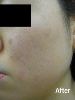 頬のニキビ・ニキビ跡の治療の症例写真[アフター]