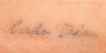 SELECT CLINIC(セレクトクリニック)のタトゥー除去の症例写真[アフター]