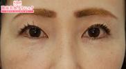 湘南美容クリニック赤羽院の目元の整形、くま治療の症例写真[アフター]