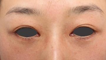 よだ形成外科クリニックの目元の整形、くま治療の症例写真[アフター]