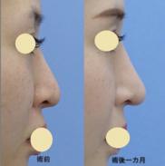 湘南美容クリニック名古屋 栄院の鼻の整形の症例写真