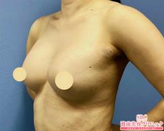 湘南美容クリニック静岡院の豊胸手術(胸の整形)の症例写真[アフター]