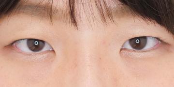 東京イセアクリニック 銀座院の目・二重の整形の症例写真[ビフォー]