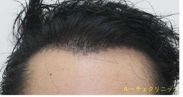 の植毛・自毛植毛の症例写真[アフター]