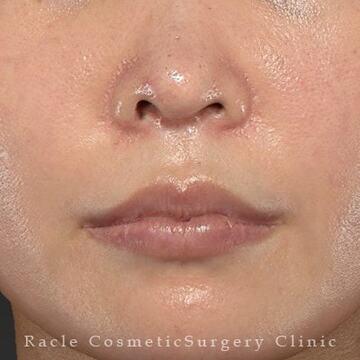新宿ラクル美容外科クリニックの口元・唇の整形の症例写真[ビフォー]