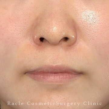 新宿ラクル美容外科クリニックの鼻の整形の症例写真[ビフォー]