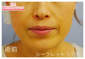 湘南美容クリニック姫路院の顔のしわ・たるみの整形(リフトアップ手術)の症例写真[ビフォー]