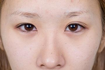 新宿中央クリニックの目・二重の整形の症例写真[ビフォー]