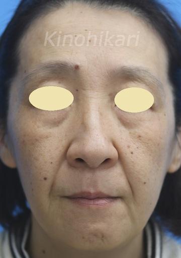 樹のひかり 形成外科・皮ふ科の顔のしわ・たるみの整形の症例写真[ビフォー]