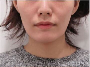 の顔のしわ・たるみの整形の症例写真[ビフォー]