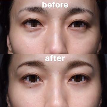 SHERIE CLINIC (シェリークリニック)の目元の整形、くま治療の症例写真