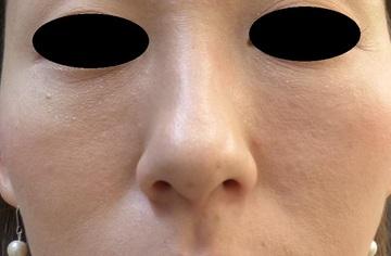 スキンコスメクリニックグループのアンチエイジング・美容点滴の症例写真[アフター]