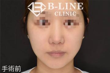 B-LINE CLINIC (ビーラインクリニック)の顔のしわ・たるみの整形(リフトアップ手術)の症例写真[ビフォー]
