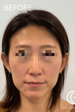 GLANZ CLINIC(グランツクリニック)の顔のしわ・たるみの整形(リフトアップ手術)の症例写真[ビフォー]