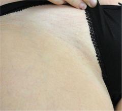佐井泌尿器科・皮フ科クリニックの医療レーザー脱毛の症例写真[アフター]