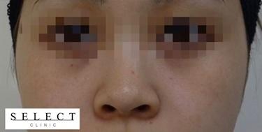 ピコスポットの症例写真[アフター]