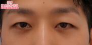 湘南美容クリニック銀座院の目元の整形、くま治療の症例写真[アフター]