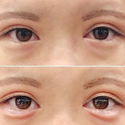 太めで大きい涙袋が欲しい 涙袋ヒアルロン酸の症例写真