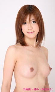 城本クリニックの豊胸手術(胸の整形)の症例写真[アフター]