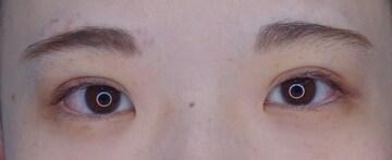 湘南美容クリニック 大阪梅田院の目・二重の整形の症例写真[アフター]