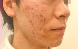 品川美容外科の顔のしわ・たるみの整形(リフトアップ手術)の症例写真[アフター]