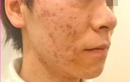 究極の肌質改善 美肌アモーレの症例写真[アフター]