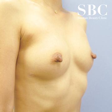 湘南美容クリニック品川院の豊胸手術(胸の整形)の症例写真[アフター]