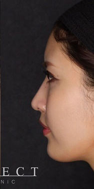 SELECT CLINIC (セレクトクリニック)の鼻の整形の症例写真[アフター]