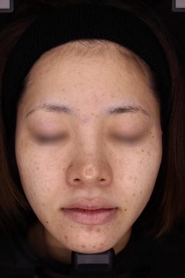 のニキビ治療・ニキビ跡の治療の症例写真[ビフォー]