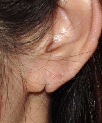 の耳の整形の症例写真[ビフォー]