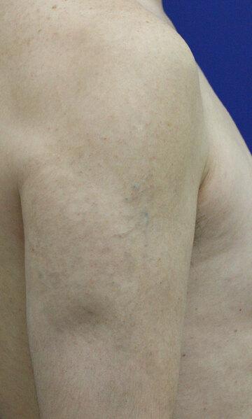 大阪 雅 -miyabi- 美容外科のタトゥー除去(刺青・入れ墨を消す治療)の症例写真[アフター]