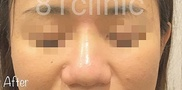 81clinicの症例写真[アフター]