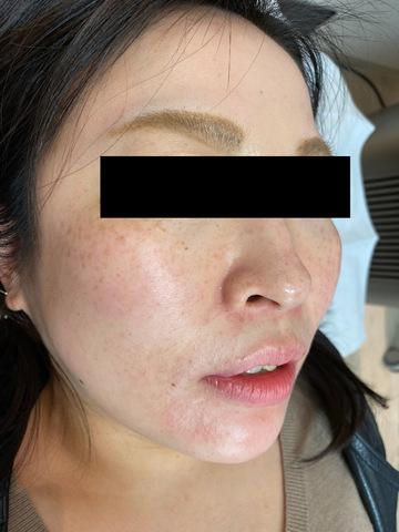 札幌クララ美容皮膚科のシミ治療(シミ取り)・肝斑・毛穴治療の症例写真[アフター]