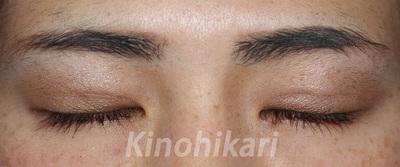 二重埋没法(両目・2点どめ)術前・術後2週間(開眼・閉眼時)の症例写真
