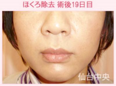 黒子除去、鼻の下の黒子の症例写真[アフター]
