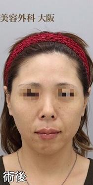 銀座みゆき通り美容外科 大阪院のシワ・たるみ(照射系リフトアップ治療)の症例写真[アフター]