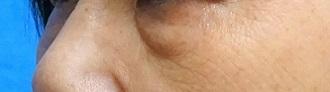 目の下のふくらみ取り(脂肪取り)パーフェクト[ビフォー]