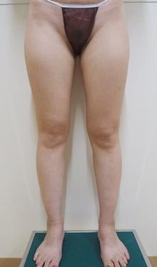 太もも・ふくらはぎ脂肪吸引※の症例写真[ビフォー]