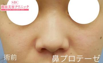 湘南美容クリニック姫路院の鼻の整形の症例写真[ビフォー]
