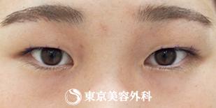 東京美容外科の目・二重の整形の症例写真[ビフォー]