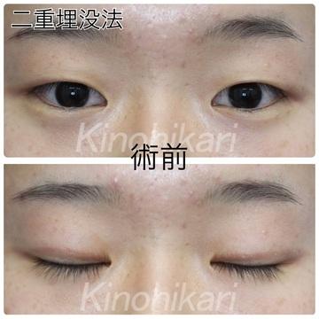 樹のひかり 形成外科・皮ふ科の目・二重整形の症例写真[ビフォー]