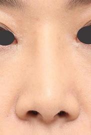 よだ形成外科クリニックの鼻の整形の症例写真[アフター]