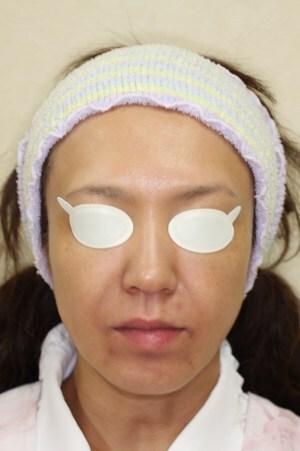 PDT(フォトダイナミックセラピー)治療の症例写真[アフター]