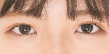東京イセアクリニック 渋谷院の目・二重整形の症例写真[アフター]