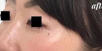 広島プルミエクリニックの症例写真[アフター]